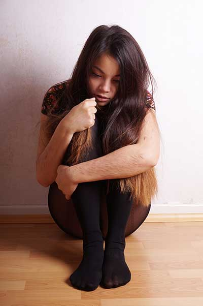 We need to act now to help teens battle self harm issues